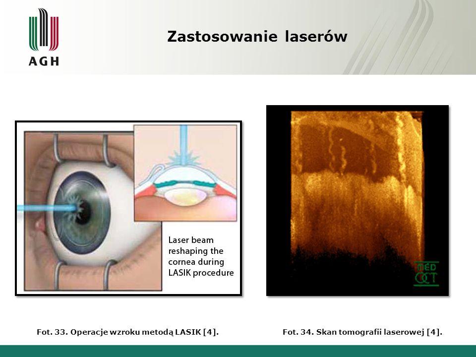 Fot. 34. Skan tomografii laserowej [4].